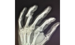 Перелом пальца: причины, диагностика, первая помощь